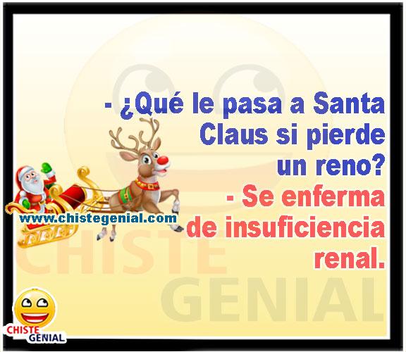 ¿ Qué le pasa a Santa Claus si pierde un reno ?